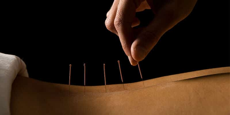 Acupuncturist treats patient's back